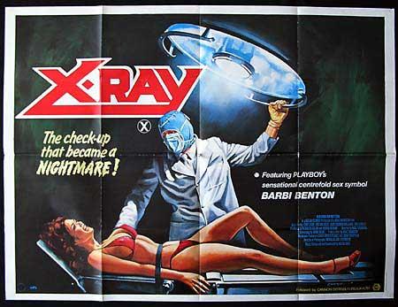 hospital-massacre-movie-aka-x-ray-1982-4